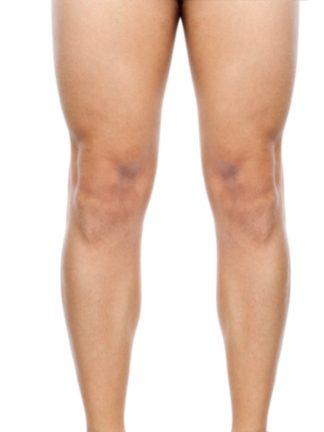 clinicasdh-laser-hombre-piernas