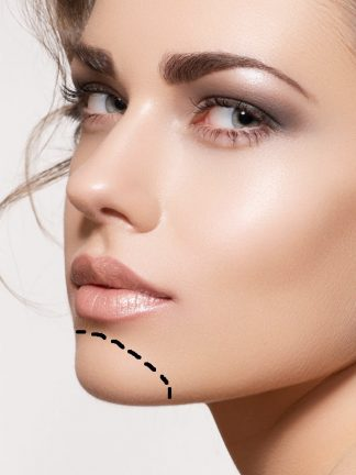 clinicasdh-laser-mujer-menton