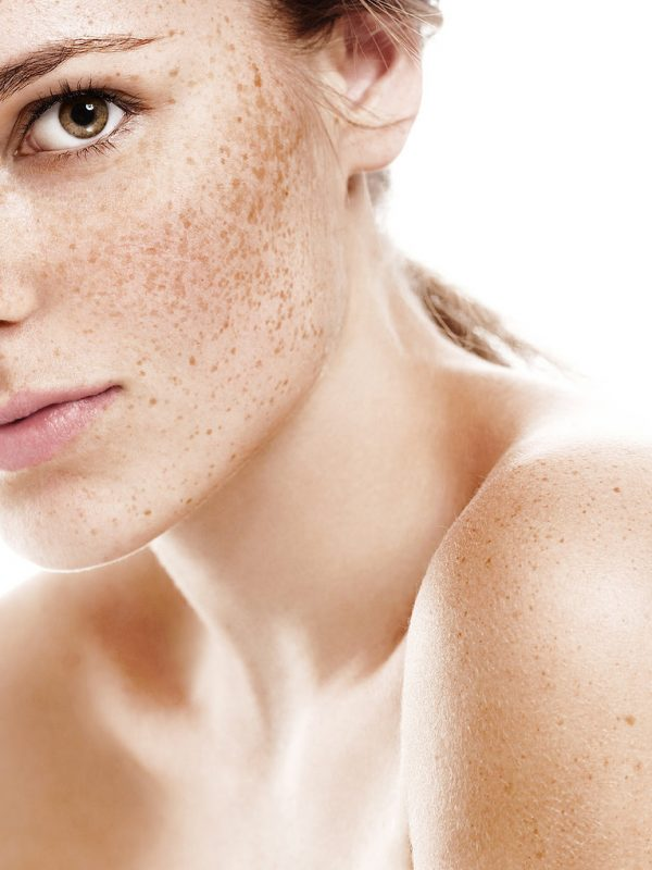 depilacion laser facial clinicasdh