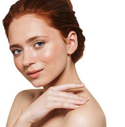 higiene-facial-radiofrecuencia-tratamiento-antiedad-clinicasdh